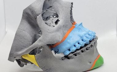 The role of surgical 3D printing in hospitals