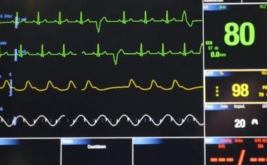 Neural networks help cardiac diagnostics