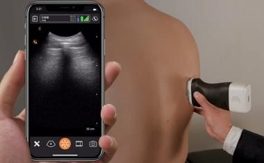 mhealth: A portable ultrasound scanner for COVID-19