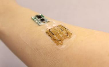 'Smart' bandages - a revolution in healing