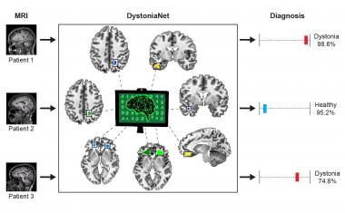 Deep learning platform accurately diagnoses dystonia