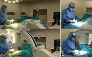 Smart glasses provide fluoroscopic guidance during surgery