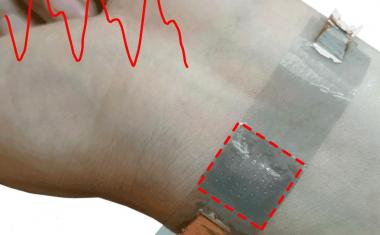 Wearable pressure-sensitive devices