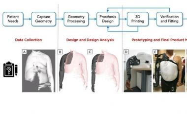 Low cost, patient-specific 3D printed prosthesis