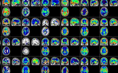 Machine learning algorithm detects early stages of Alzheimer's