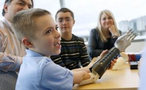 Custom design improves the aesthetic of prosthetic for kids