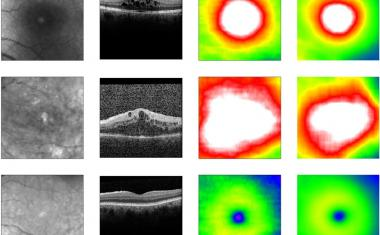 Deep learning enables screening for eye disease