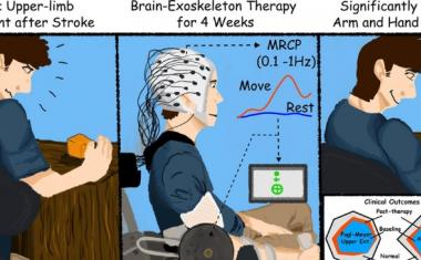 Exoskeleton and brain-machine interface boost stroke rehab