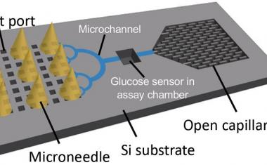 Microneedles: Nano-sized, huge impact