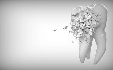 3D printing resins in dental devices may be toxic