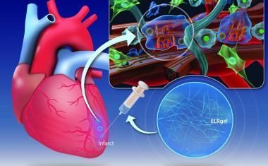 Hydrogel injection may repair heart muscle damagage