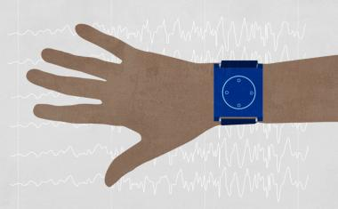 Wristband predictings pediatric seizures