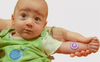 Sticker detects cystic fibrosis in newborn's sweat