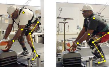 Powered prosthetic ankles restore functions for amputees