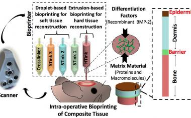 Bioprinting: Skin and bones repaired during surgery