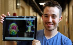 AI automates radiation therapy planning