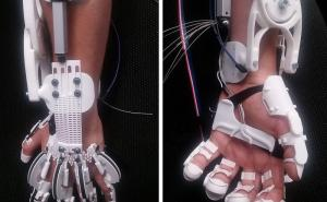 Paralyzed hand becomes functional again through exoskeleton