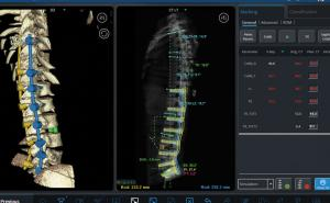 Robotic technology enhances spine surgery