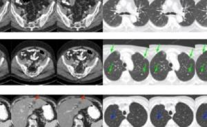 Machine learning: superior results for low-dose CT
