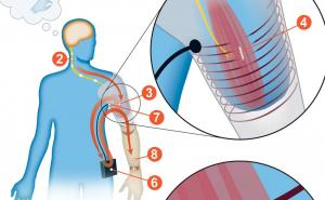 Prosthetics: sensors implanted for wireless control of muscle signal