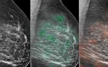 Combination of AI and radiologists accurately identified breast cancer