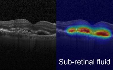 Advanced AI boosts clinical analysis of eye images