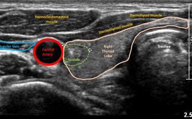 Using AI to predict risk of thyroid cancer on ultrasound