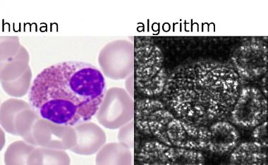 AI-driven blood cell classification supports leukemia diagnosis
