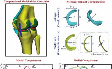 Groundwork for patient-specific 3D printed meniscus