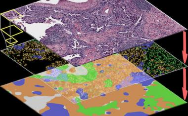 ConvPath software uses AI to identify cancer cells