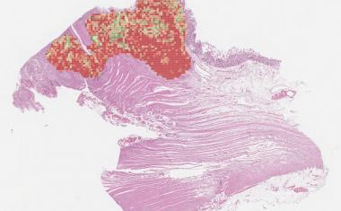 Colon cancer: AI-based marker can improve quality of treatment