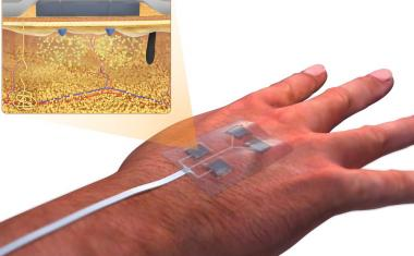'Smart' bandages heal chronic wounds