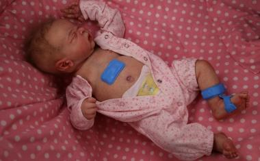 Skin-mounted sensors monitor babies in the developing world