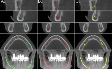 Dentistry: AI helps localize the mandibular canals