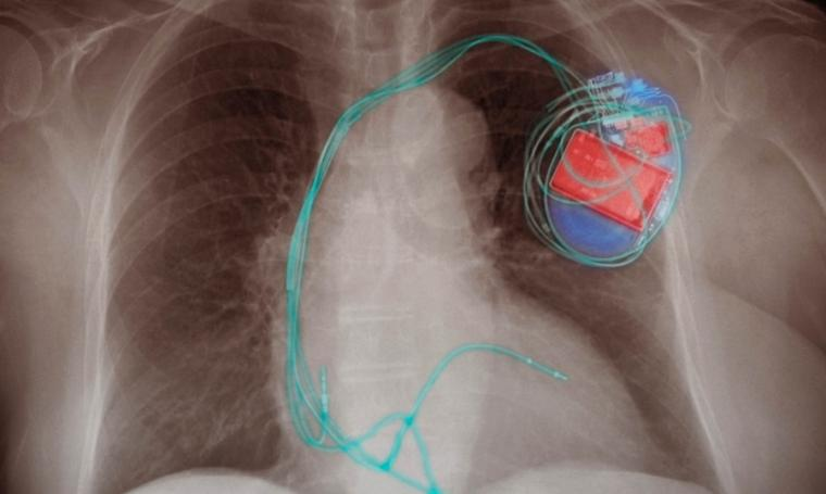 The new material could be used to develop devices that convert blood pressure...