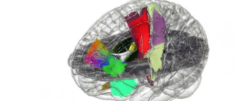 A holographic image of the human brain.