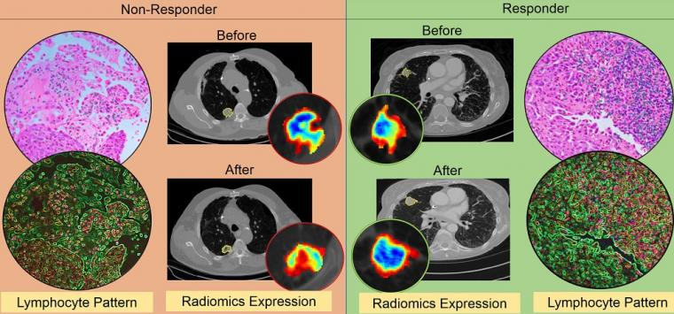 The figure shows differences in CT radiomic patterns before and after...