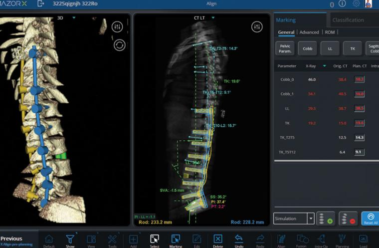 A new technology that increases the safety and precision of spinal fusion...