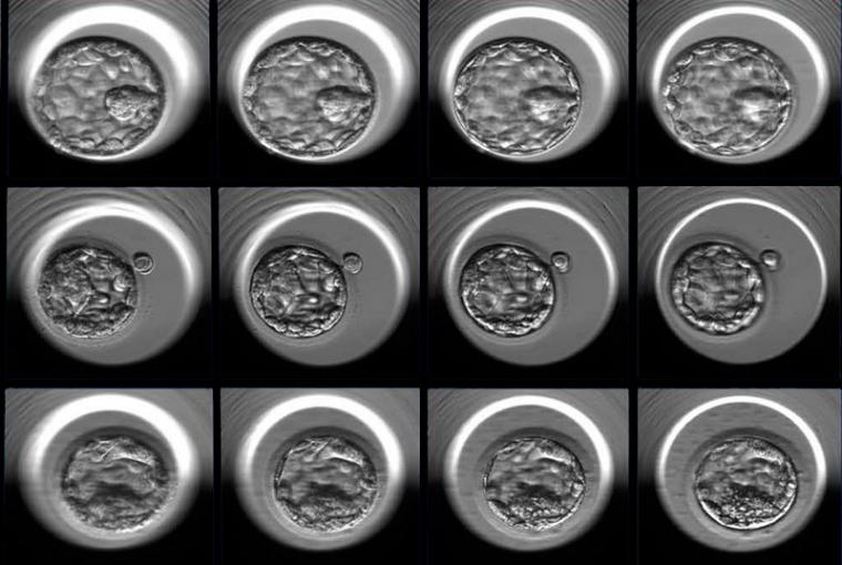 Three examples of human embryos at the blastocyst stage photographed at...