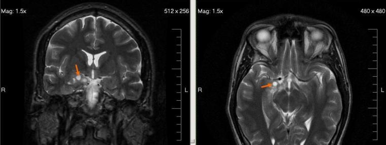 Blondis, MRI glioma 28 yr old male, marked as public domain, details at...