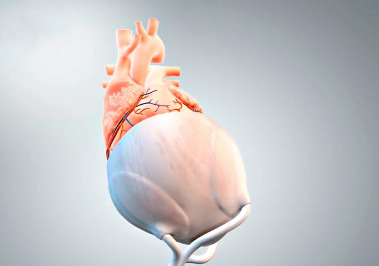 The first application of the pericardium replacement material is to produce a...
