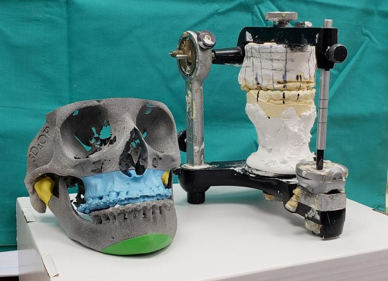 3D planning in orthognathic surgery replaced the old method that required the...
