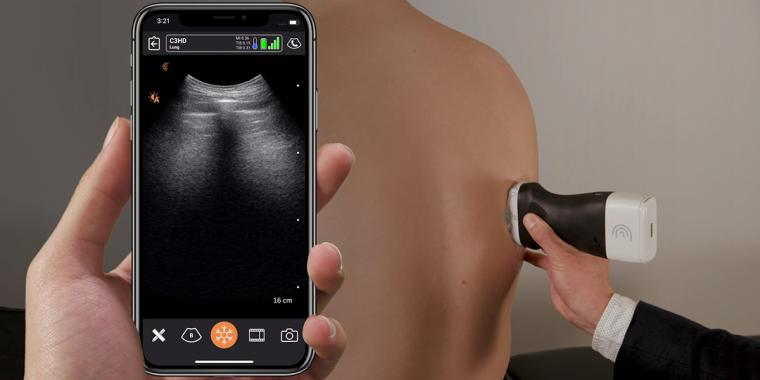 The scanners—called PoCUS, for point-of-care ultrasound— were designed and...