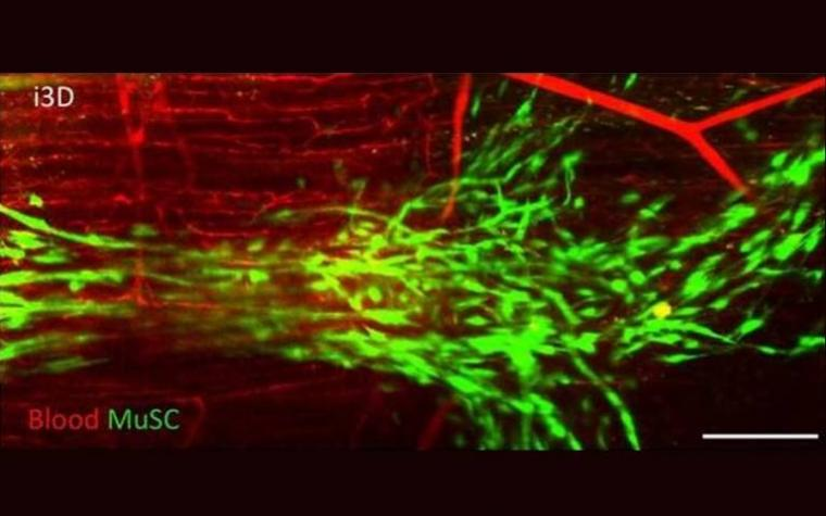 Blood vessels printed using using innovative technique dubbed 'intravital 3D...